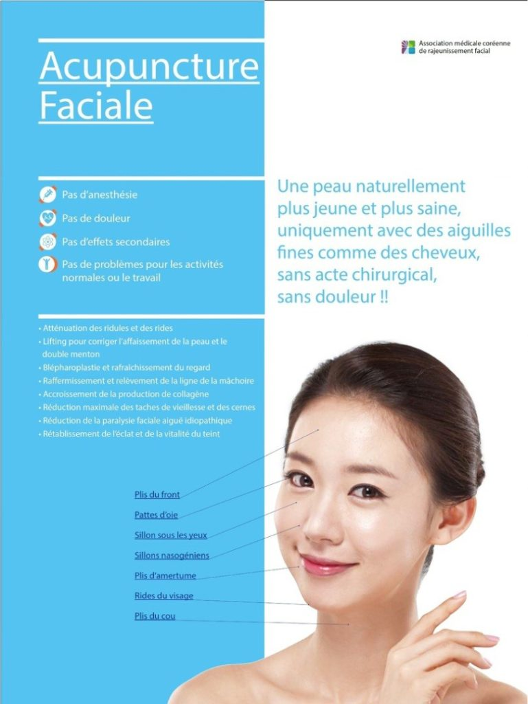 Acupuncture faciale - Aculifting